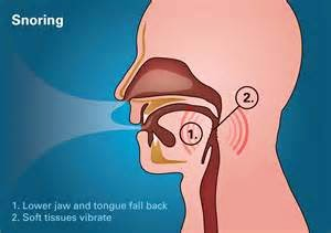 Snoring and Sleeping Disorders Image