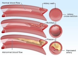 12 Natural Foods Must eat Regularly For Clean and Unclogged Arteries