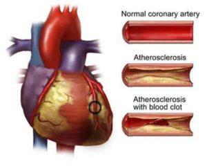 Say Goodbye To Cardiovascular Disease & Diabetes