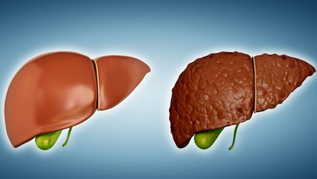 Cure liver diseases