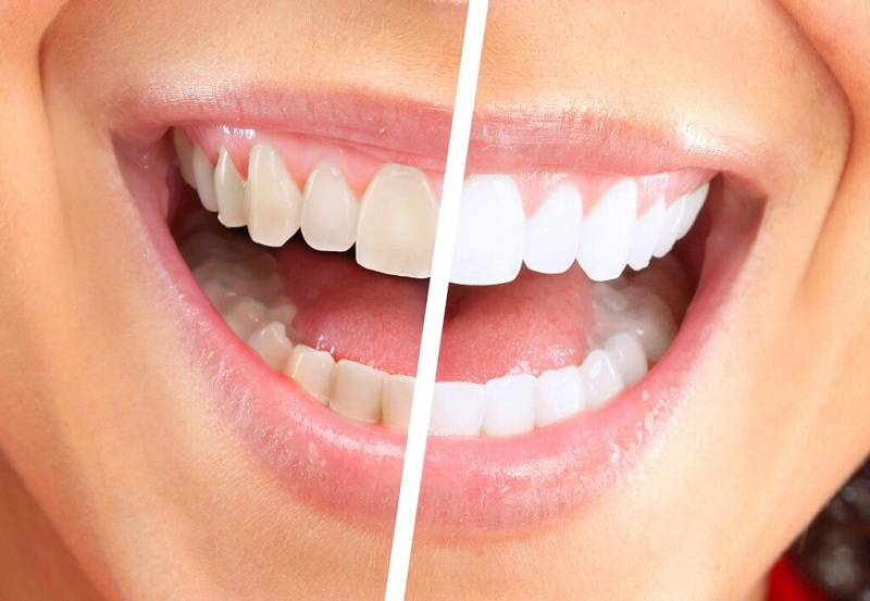 Simple Remedies for Naturally Teeth whitening at Home
