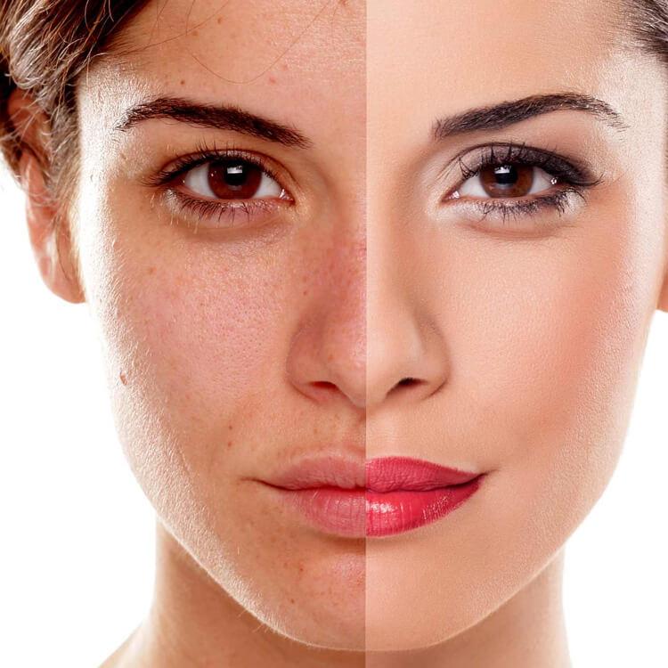 Hyper-pigmented Skin Cure