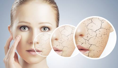 Dry-Skin Remedies to get Soft Fair and Beautiful Skin