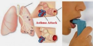 Asthma Causes Prevention Diet and Home Remedies