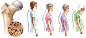 Osteoporosis Disease and Prevention-Food For Bones