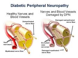 Neuropathy Symptoms Prevention and Treatment-Respiratory Disorders