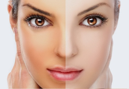 Whitening Treatment Facial