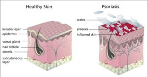 Psoriasis Causes Symptoms and Home Remedies
