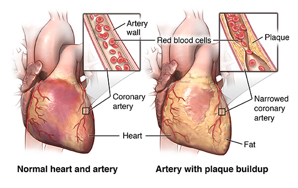 Natural Remedy and Treatment for Cardiovascular Disease