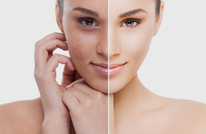 Skin effect in Metro