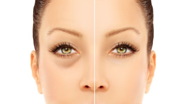 For Under Eye Circles-Dark Circles