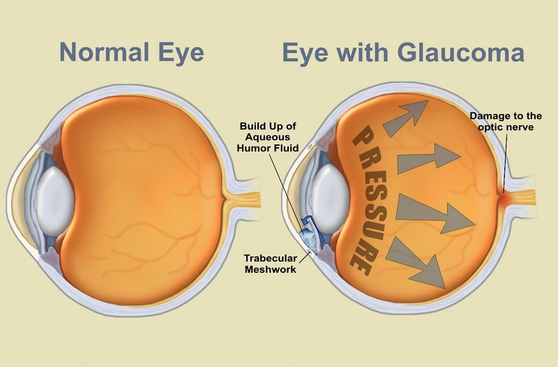 Get examined for glaucoma