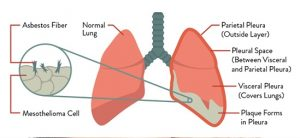 Diagnosis of Mesothelioma and Early Treatment