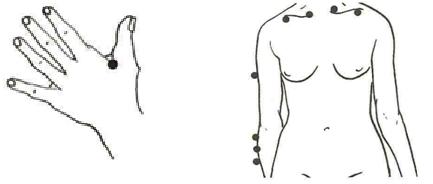 Shoulder joint rheumatism